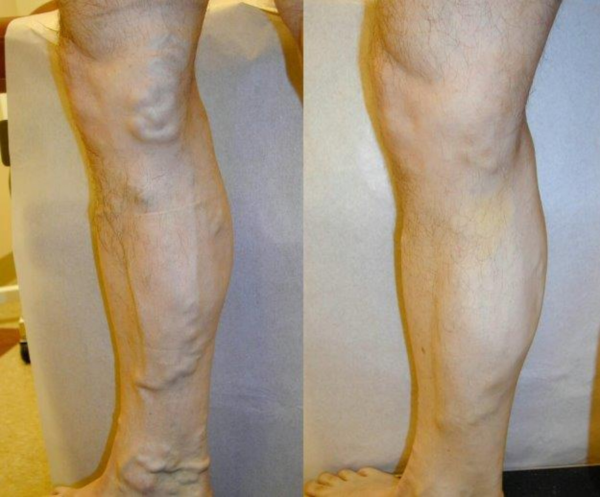 Before & After: Varicose Vein Treatment